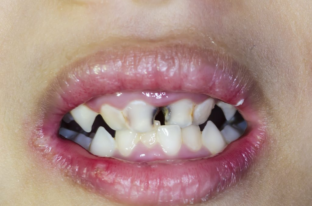 Bad teeth with cavities due to soda